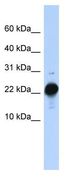 Western blot - CSHL1 antibody (ab82864)