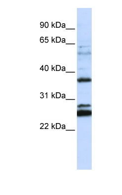 Western blot - FAM70A antibody (ab82866)