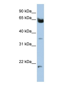 Western blot - Homez antibody (ab82867)