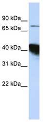 Western blot - KIAA0427 antibody (ab82891)