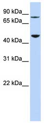 Western blot - DPH2 antibody (ab82893)