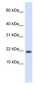 Western blot - GABARAPL2 antibody (ab82900)