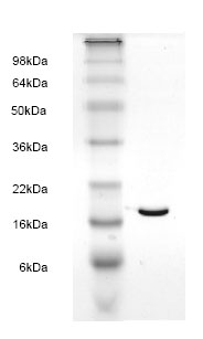 SDS-PAGE - FABP6 protein (His tag) (ab82905)