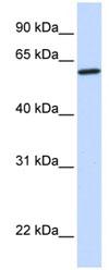 Western blot - CYP27A1 antibody (ab82926)