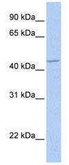Western blot - GABA A Receptor alpha 5 antibody (ab82927)