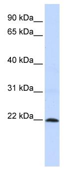 Western blot - ZNF581 antibody (ab82930)