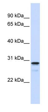 Western blot - FAM78B antibody (ab82932)