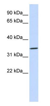 Western blot - RHCE antibody (ab82933)