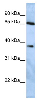 Western blot - USP3 antibody (ab82935)