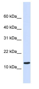 Western blot - C1ORF95 antibody (ab82936)