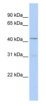 Western blot - TBX10 antibody (ab82937)