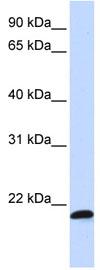 Western blot - C21ORF56 antibody (ab82951)