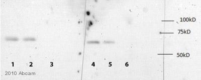 Western blot - IGF2BP1 antibody (ab82968)