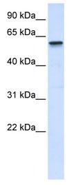 Western blot - TRIM41 antibody (ab82973)