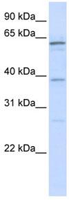 Western blot - HCC1 antibody (ab82975)
