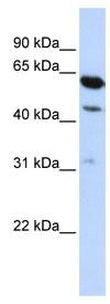 Western blot - HEPACAM2 antibody (ab82977)