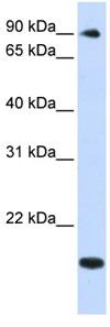 Western blot - TSR1 antibody (ab82982)