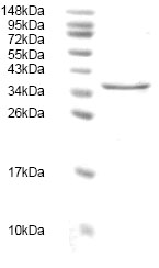 SDS-PAGE - ST2 protein (His tag) (ab82985)