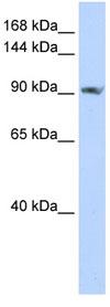 Western blot - SCUBE2 antibody (ab82987)