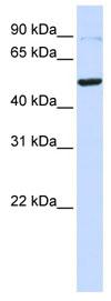 Western blot - Tin2 antibody (ab82998)