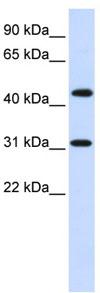 Western blot - ZNF684 antibody (ab82999)