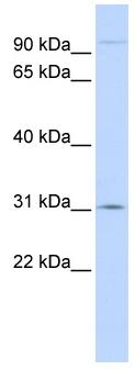 Western blot - MSH5 antibody (ab83004)