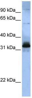 Western blot - SFRS2B antibody (ab83006)