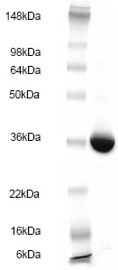 SDS-PAGE - glutathione S transferase Omega 1 protein (His tag) (ab83020)