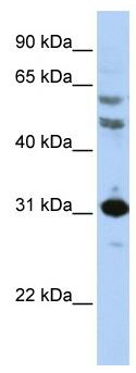 Western blot - HOXB5 antibody (ab83025)