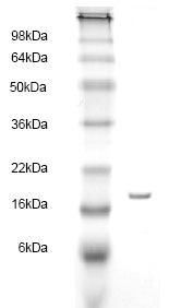 SDS-PAGE - Fatty Acid Binding Protein 5 protein (His tag) (ab83027)