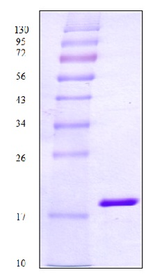 SDS-PAGE - BLBP protein (His tag) (ab83028)