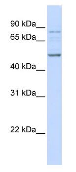 Western blot - ALS2CR12 antibody (ab83040)