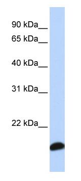 Western blot - Peroxiredoxin 5 antibody (ab83045)