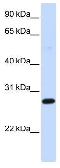 Western blot - DCK antibody (ab83046)
