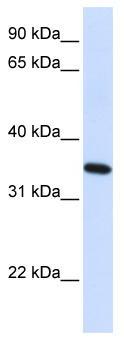 Western blot - Reticulon 1 antibody (ab83048)