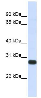 Western blot - HGFA Inhibitor 2 antibody (ab83056)