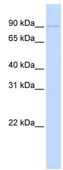 Western blot - PRDM13 antibody (ab83062)