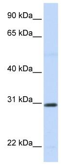 Western blot - Stanniocalcin 1 antibody (ab83065)