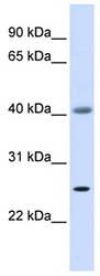Western blot - ADA antibody (ab83069)