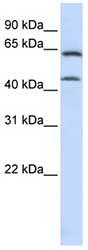 Western blot - CSGALNACT1 antibody (ab83071)