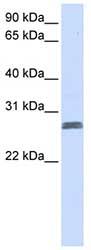 Western blot - TMEM51 antibody (ab83072)