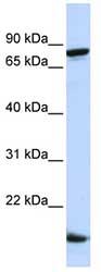 Western blot - Zfp281 antibody (ab83075)