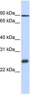 Western blot - RBPMS antibody (ab83090)
