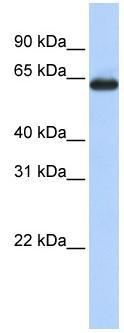 Western blot - SLC34A3 antibody (ab83093)