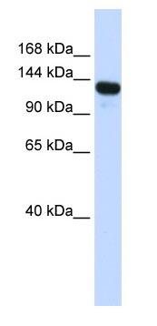 Western blot - RENT1/hUPF1 antibody (ab83095)