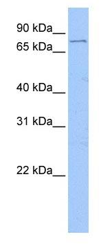Western blot - FOXM1 antibody (ab83097)