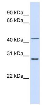 Western blot - RPL3 antibody (ab83098)