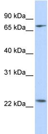 Western blot - ZNF185 antibody (ab83100)