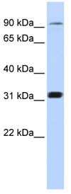 Western blot - CNNM4 antibody (ab83105)