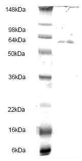 SDS-PAGE - Integrin linked ILK protein (His tag) (ab83119)